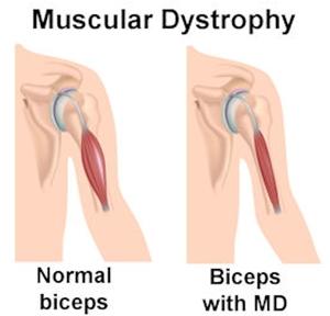 Muscular Dystrophy, Mayopathy