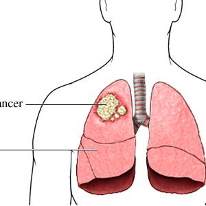 Lungs and Bronchial Cancer