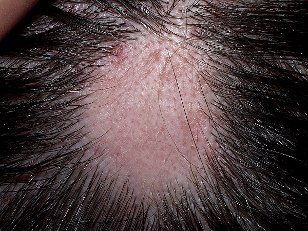 Alopecia, Alopecia Areata, Hair Fall