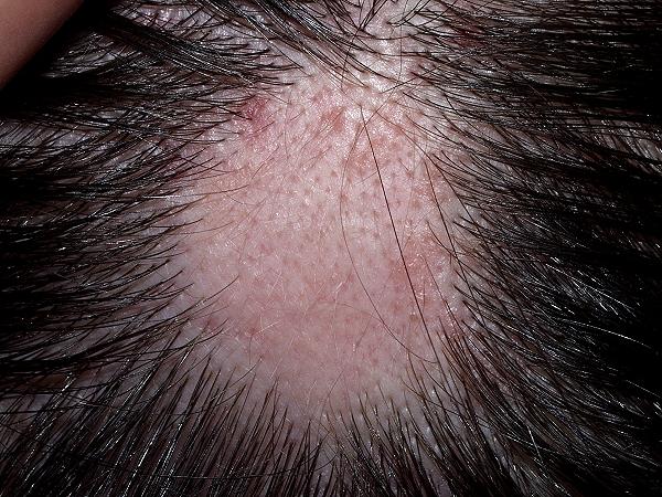 Alopecia, Alopecia Areata, Hair Fall