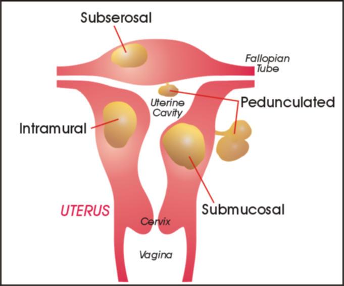 Uterine Fibroids, Fibroid  Uterus