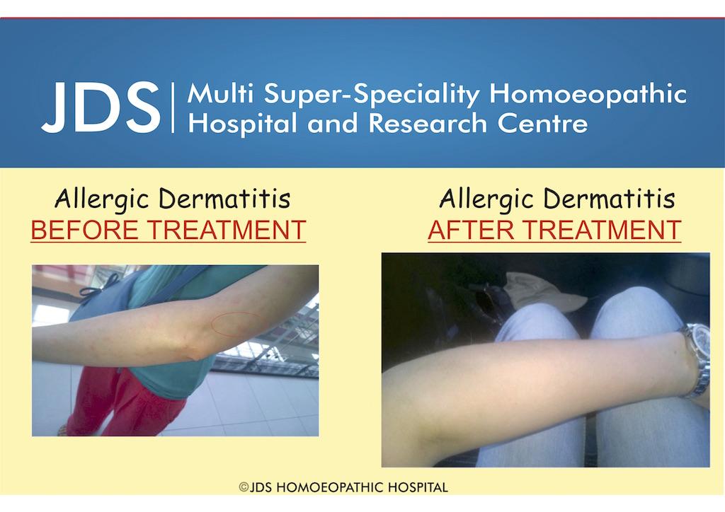 Allergic Dermatitis 1