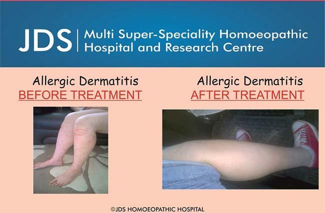 Allergic Dermatitis 2-f