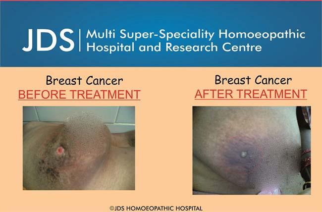 Breast Cancer-final