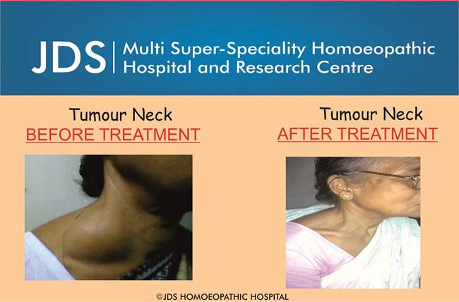 Neck Tumour-f