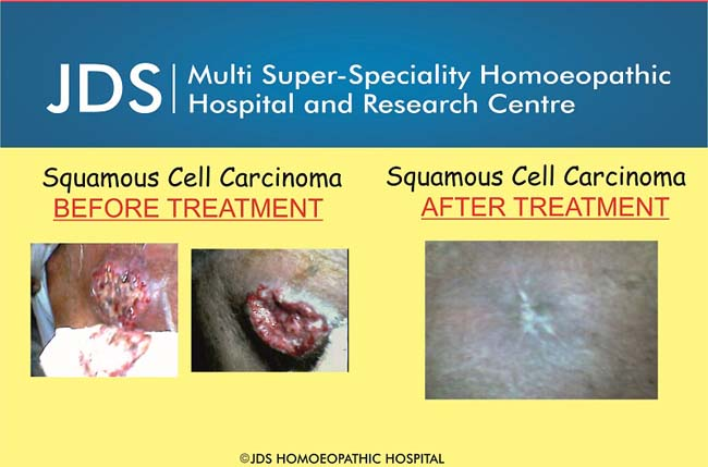 Sqamous cell carcinoma-f