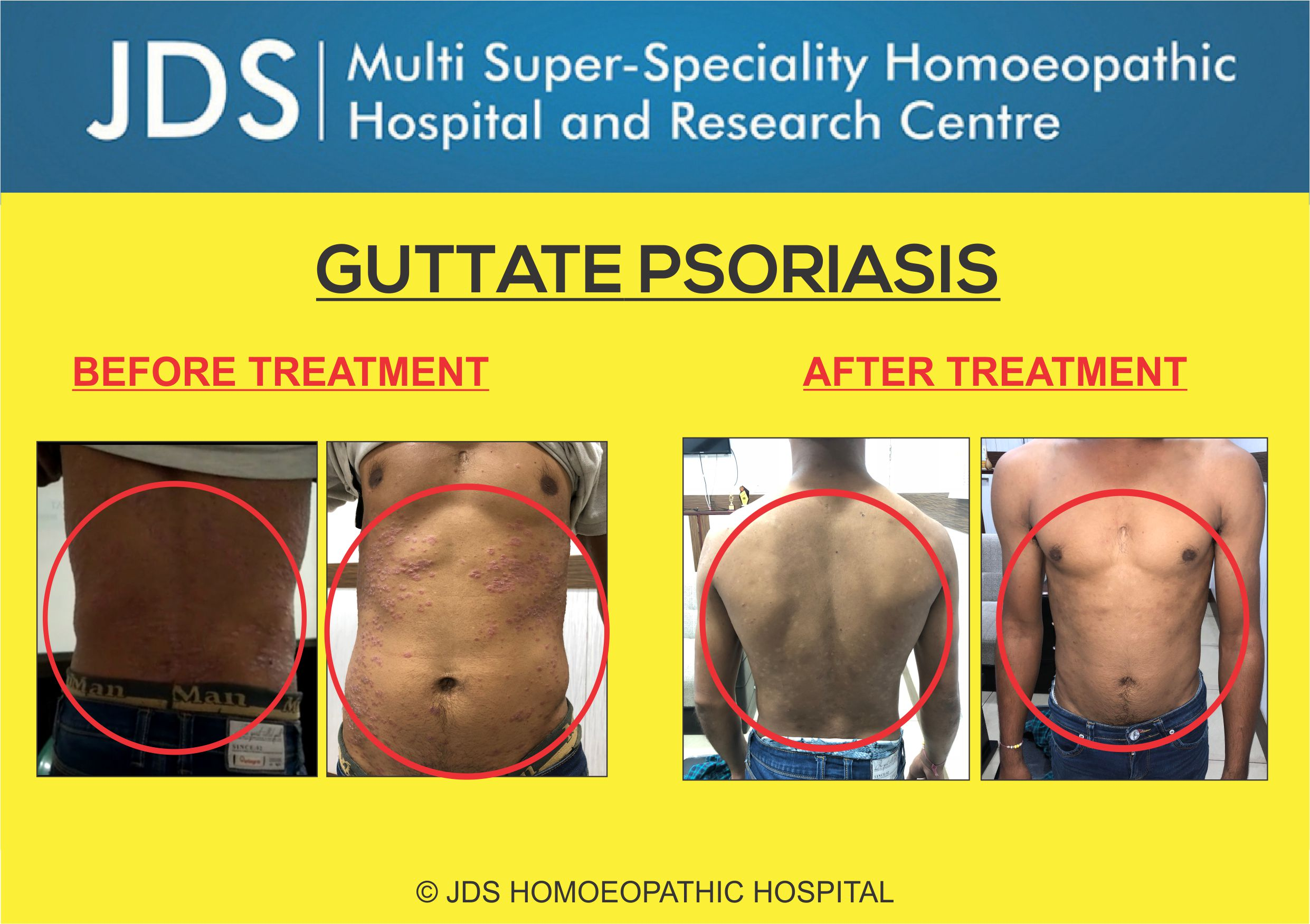 PSORIASIS TREATMENT BEFORE & AFTER