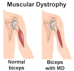 Muscular Dystrophy, Mayopathy