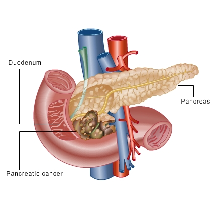 Know about Pancreas Cancer