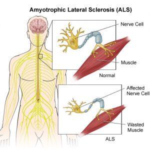 MOTOR NEURON DISEASE & HOMOEOPATHY